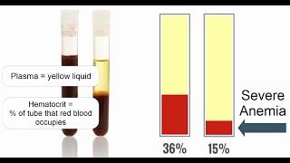 IV Immune Globulin (IVIG,IV IgG) for ITP | ChemoExperts