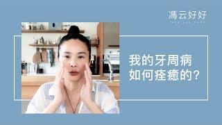 重度牙周病完全痊癒的方法分享(重點整理版)