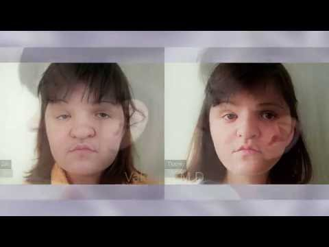 Новое лицо. Пластика лица и Ринопластика. Жизнь после. Rhinoplasty. Часть II