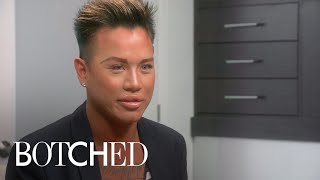 """Botched"" Patient Is Obsessed With Big Doll-Like Lips 