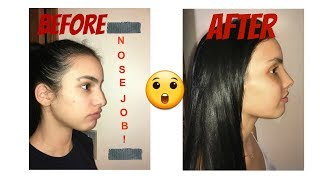 ALL ABOUT MY NOSE JOB,BEFORE & AFTER, DAILY PROGRESS VLOGS + PICS-| NERSYLABRADA