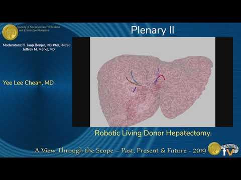 Hepatektomia laparoskopowa od dawcy żywego z użyciem robota