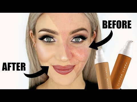 NO BULLSH*T Fenty Beauty Matte Foundation Review (Acne + Oily Skin)