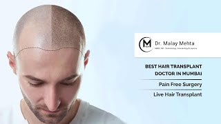 All You Need To Know About Hair Transplant