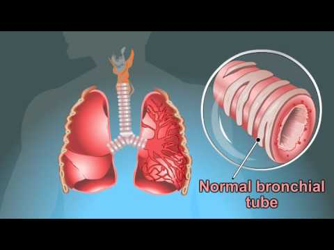 Video what are the Symptoms Of Tuberculosis................??????