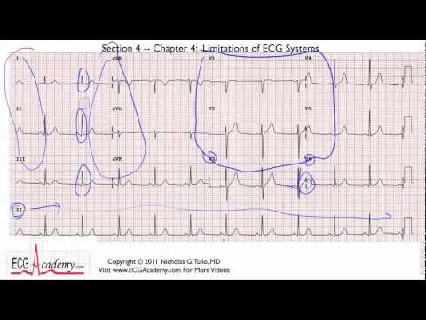 Interpretacja EKG - Ograniczenia EKG/Atrefakty, 4-4