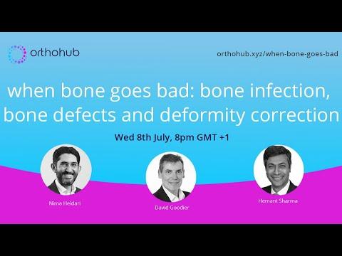 Articulațiile șoldului și genunchiului doare
