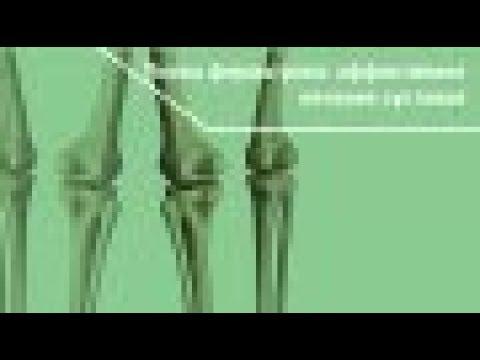 Боль в коленных суставах и икрах