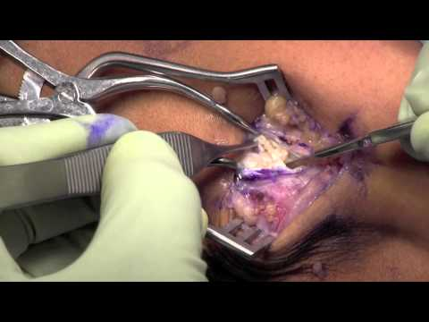 Lateral Epicondylitis Surgery