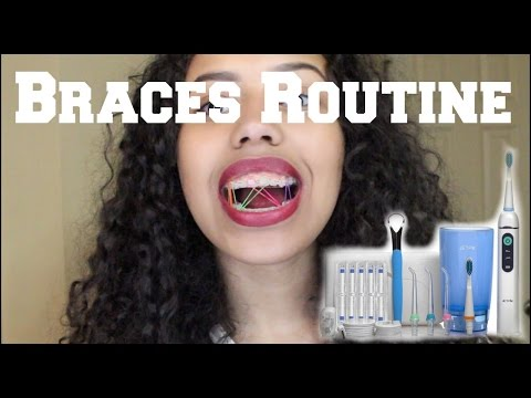 Braces Routine 2017 : WATER FLOSSER AND KEEPING TEETH WHITE