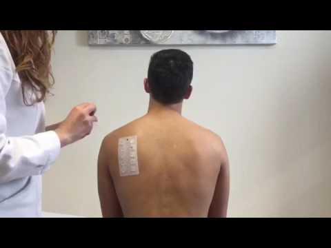 Risposte di sintomi di eczema