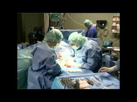 Die Operation auf dem Bein warikos das Foto