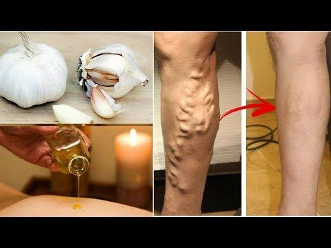 Perché su una gamba la vena appare attraverso