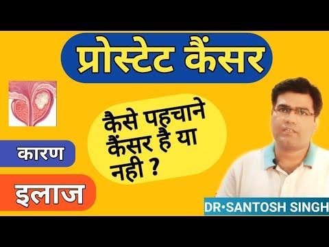 Il cancro alla prostata negli uomini