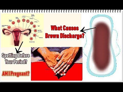 Brown Spotting Between Periods - смотреть онлайн на Hah Life
