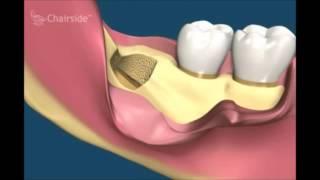 Удаление зубов  Все виды удаления зубов моляры премоляры резцы анастезии  Хирургическая стоматология