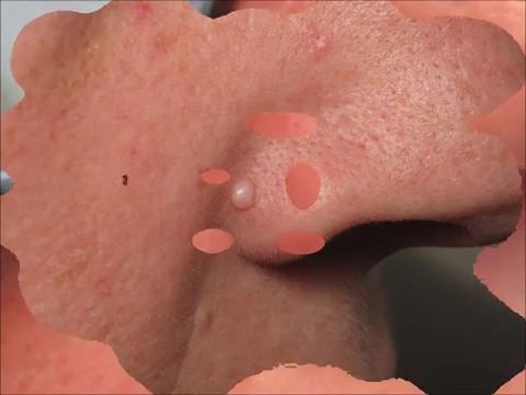 Hemlock, e il trattamento del cancro alla prostata