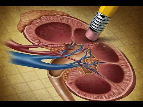 Il corretto trattamento della prostatite cronica