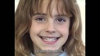 [VOSTFR] Emma Watson Essaye Les Fausses Dents DHermione Granger (2000)