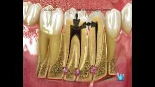 Orígen de la caries dental. Clinica dental en Madrid DeltaDent.