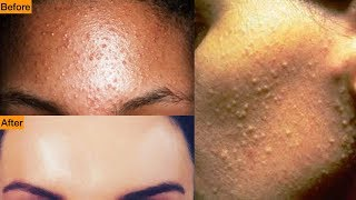 Get Rid Of Tiny Bumps On Face || Simple Home Remedy || Mamtha Nair