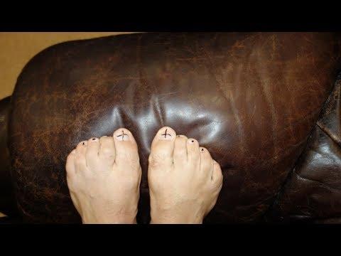 Droschschewoj gribok bei den Frauen auf den Nägeln die Behandlung