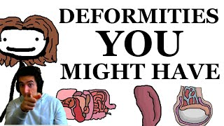 Deformities That You Might Have By Sam O'Nella Academy Reaction