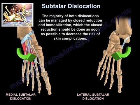 Cum se vindecă inflamația articulațiilor umărului