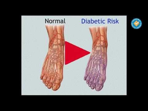 Тип 2 диабет алопуринол