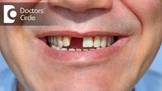 Is a Dental Bridge removable? - Dr. Mohammed Fayaz Pasha