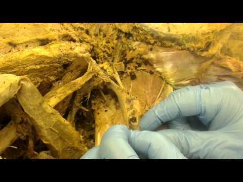 Schmerzen in den Zehen bei Osteochondrose