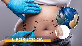 Video Liposuccion
