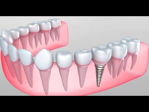 Почему имплантация зубов лучше обычного протезирования?