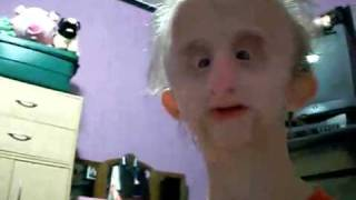 Смотреть онлайн Самый страшный человек с физическим уродством