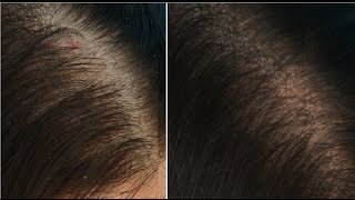 6 Tips To _ STOP Hair Fall & Grow Hair Faster! _ (Prachi SuperWowStyle)
