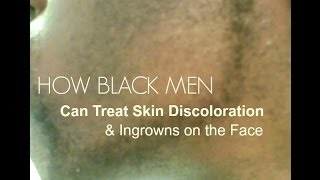 How Black Men Can Treat Skin Discoloration & Ingrowns (Black Skin Care)