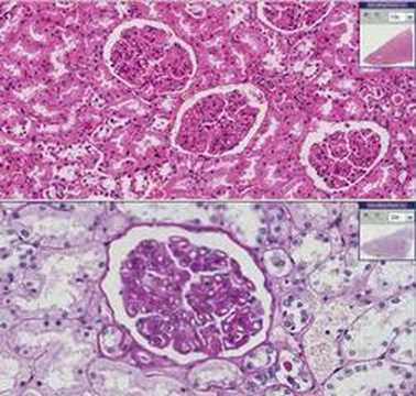 Radiologischen Zeichen der pulmonalen Hypertonie in der Lunge