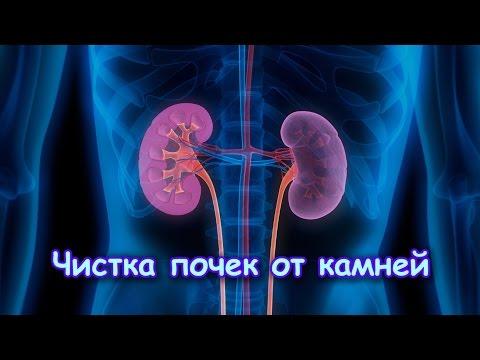 Рак предстательной железы повышение температуры