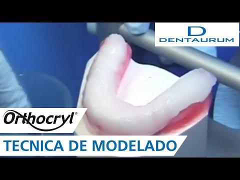 Orthocryl® - férula oclusal con la técnica de modelado (aparatos dentales)