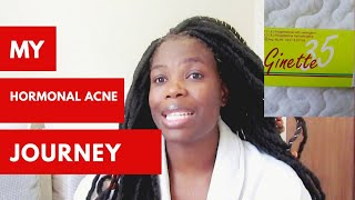 Birth control that clears ance || hormonal acne || South African Youtuber
