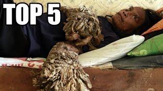 TOP 5 - Děsivých vzácných nemocí