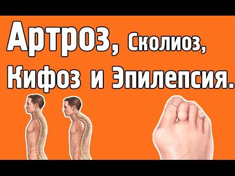 Физические упражнения при сколиозе у подростков