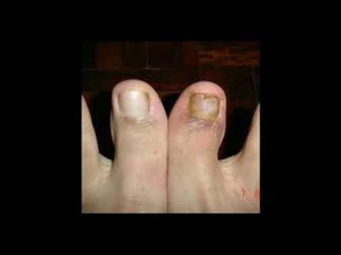 Ascesso su un dito vicino a rimedi di gente di unghia di trattamento
