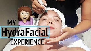 My HydraFacial Treatment - Watch The Before & After!