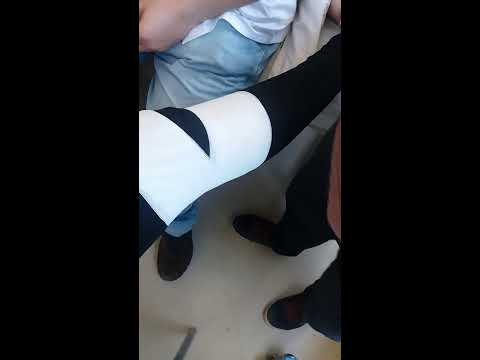 Cómo prevenir deformidades de las articulaciones