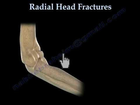 Medicament pentru tratamentul artrozei degetelor de la picioare