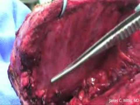 Prosthesis Of Scapula Radical Removal Due To Sarcoma Of The Ewing - Part 3