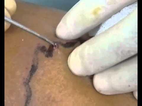 Esofago varicosity mkb