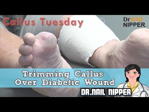 Sindromul nefropatia diabetică
