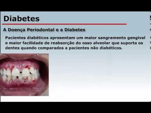 Alimentos de mesa que podem ser comidos com uma pitada de açúcar no sangue